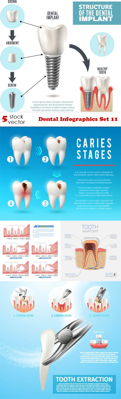 Vectors - Dental Infographics Set 11
